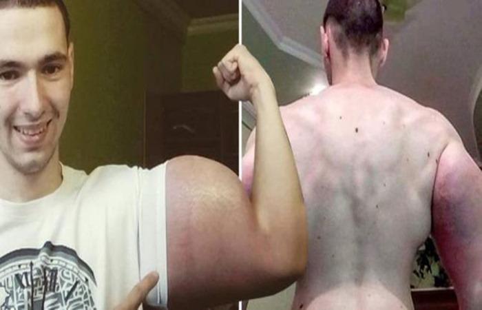 Terobsesi Miliki Otot Kekar, Tangan Pria Ini Terancam Diampitasi