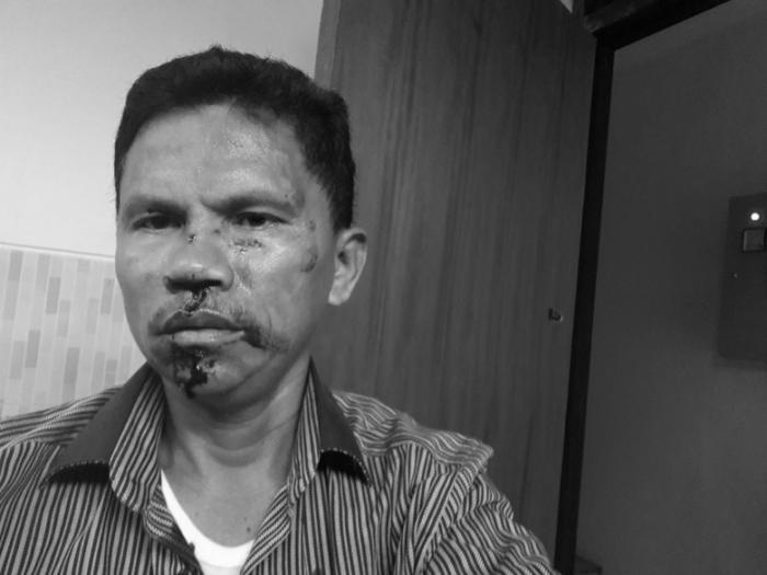 Anggota DPRD Ini 'Bonyok' Dikeroyok Gara-gara Meme Amien Rais-Rizieq